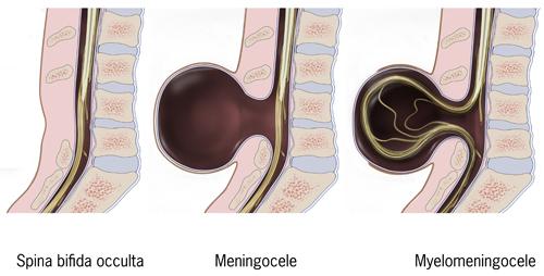 Typesofspinabifida