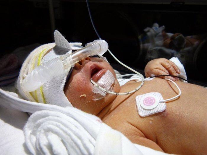 preterm birth5
